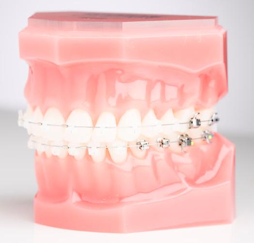 Advanced Ceramic Self-Ligating Braces at PEARL ALIGN™ Orthodontic & Invisalign Clinic Bangalore