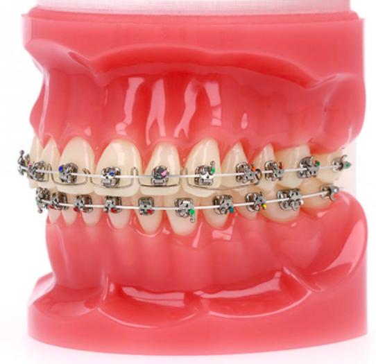 Advanced Metal Self-Ligating Braces at PEARL ALIGN™ Orthodontic & Invisalign Clinic Bangalore 