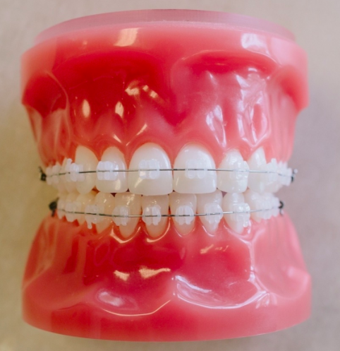 Ceramic Braces - Traditional variants at PEARL ALIGN™ Orthodontic & Invisalign Clinic Bangalore