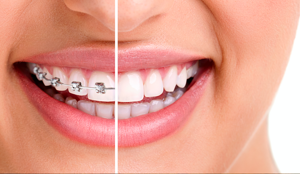 Dental braces in Bangalore - Pearl Align orthodontic clinic, teeth alignment