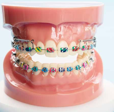 Early childhood braces at PEARL ALIGN™ Orthodontic & Invisalign Clinic Bangalore