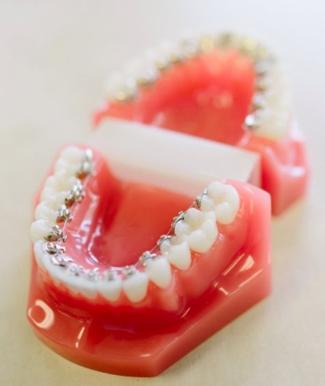 Lingual Braces at PEARL ALIGN™ Orthodontic & Invisalign Clinic Bangalore.