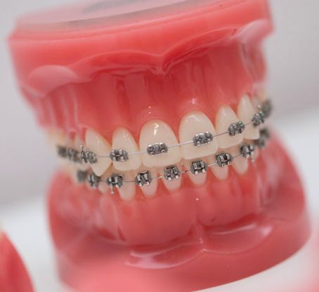 Metal Braces - Traditional variants at PEARL ALIGN™ Orthodontic & Invisalign Clinic Bangalore
