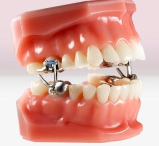 Myofunctional appliances at PEARL ALIGN™ Orthodontic & Invisalign Clinic Bangalore