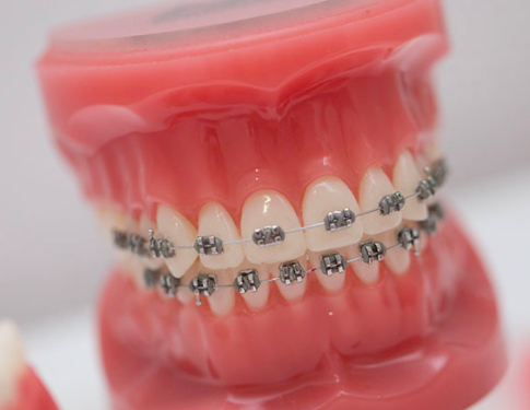 How do metal braces work