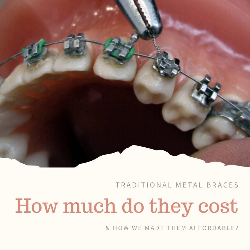 Metal braces cost at PEARL ALIGN™ Orthodontic & Invisalign Clinic Bangalore