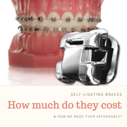 Self-ligating cost at Pearl Align Orthodontics