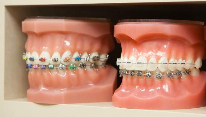 Advantages of Traditional Dental Braces